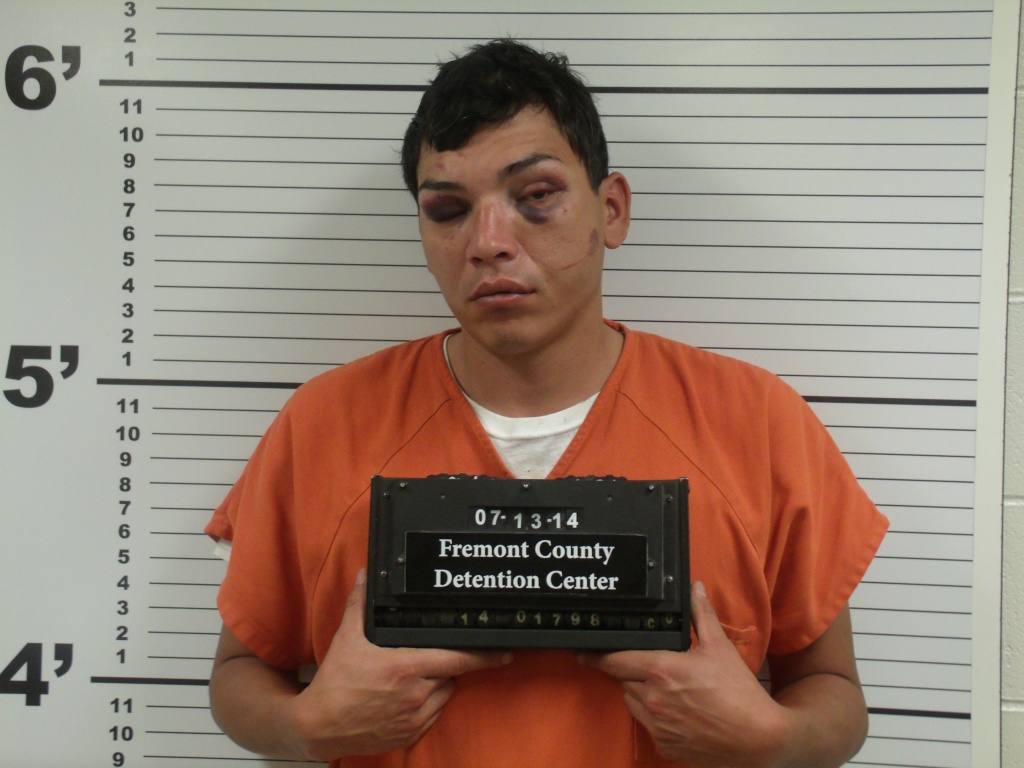 Michael Thomson's booking photo showed the result of him picking a fight and punching several women. (FCSO)
